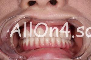 Пациентка Е. - состояние зубов после имплантации