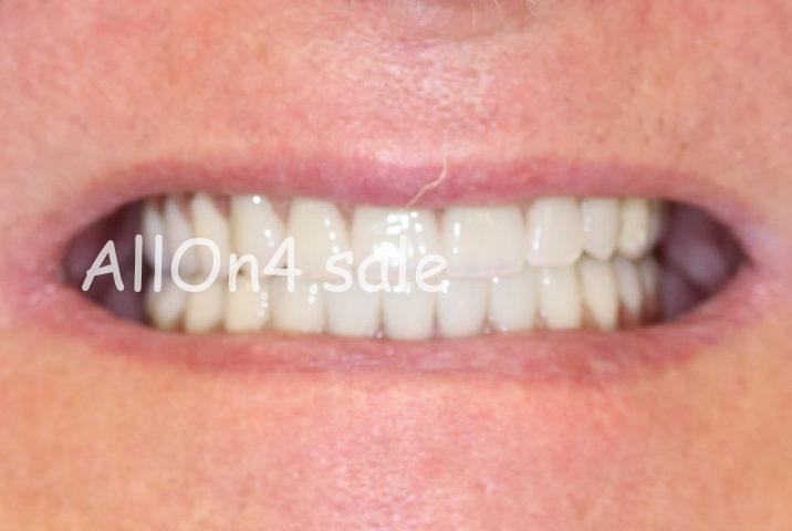 Пациент Б. - имплантация обеих челюстей методом Всё на четырёх