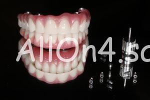 несъемный протез челюсти