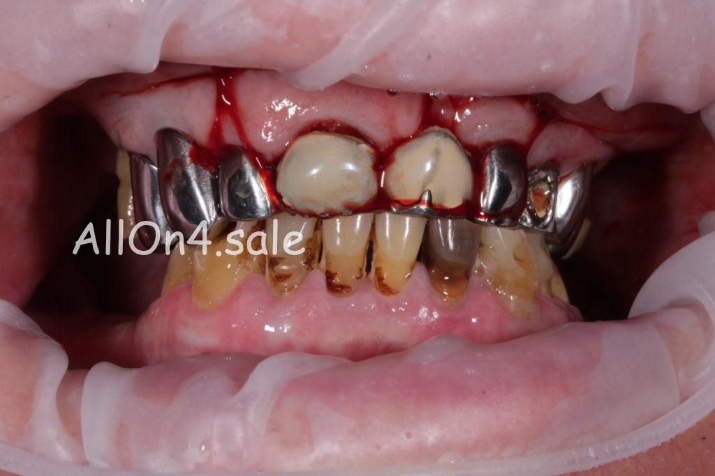 Фото ДО - Пациент Б. - имплантация обеих челюстей методом Всё на четырёх