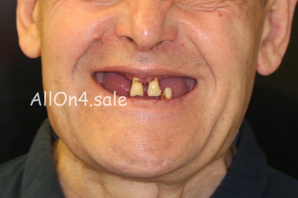 Фото ДО - Пациент Г. - Все на 4 имплантах на верхней и нижней челюсти
