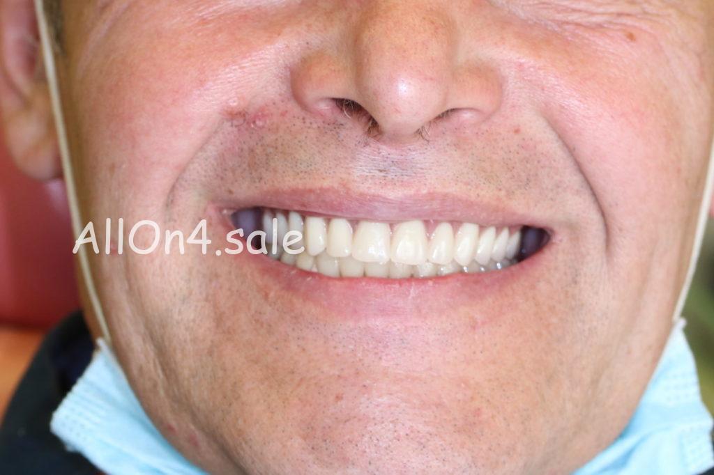 Фото ПОСЛЕ - Пациент Г. - Все на 4 имплантах на верхней и нижней челюсти