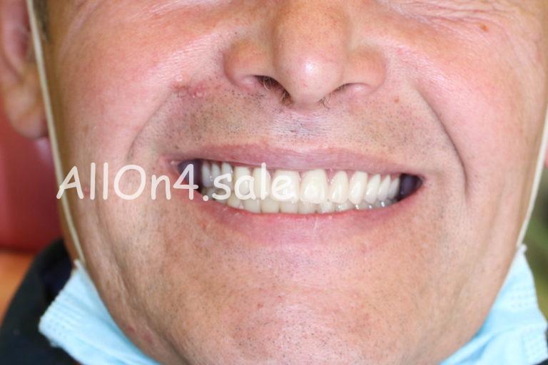 Пациент Г. - Все на 4 имплантах на верхней и нижней челюсти