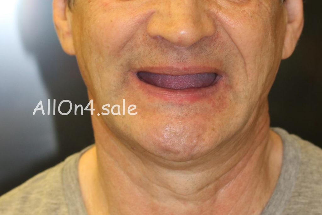 Фото ДО – Пациент Д. – All-on-4 на четырех имплантах при адентии