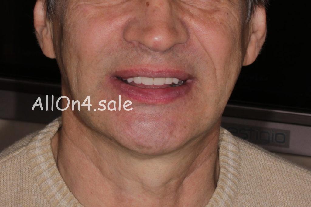 Фото ПОСЛЕ – Пациент Д. – All-on-4 на четырех имплантах при адентии