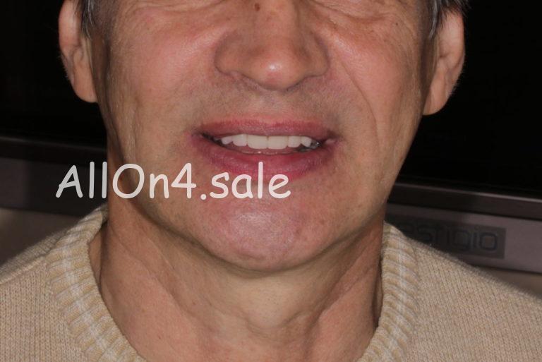 Пациент Д. - All-on-4 на четырех имплантах при адентии