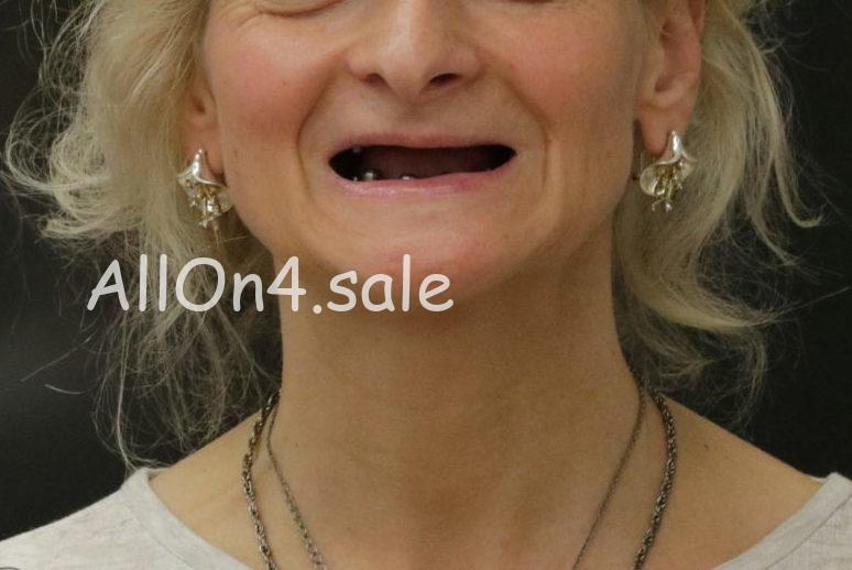Фото ДО - Пациентка Н. – Зубы за 1 день по протоколам All-on-4 и All-on-6