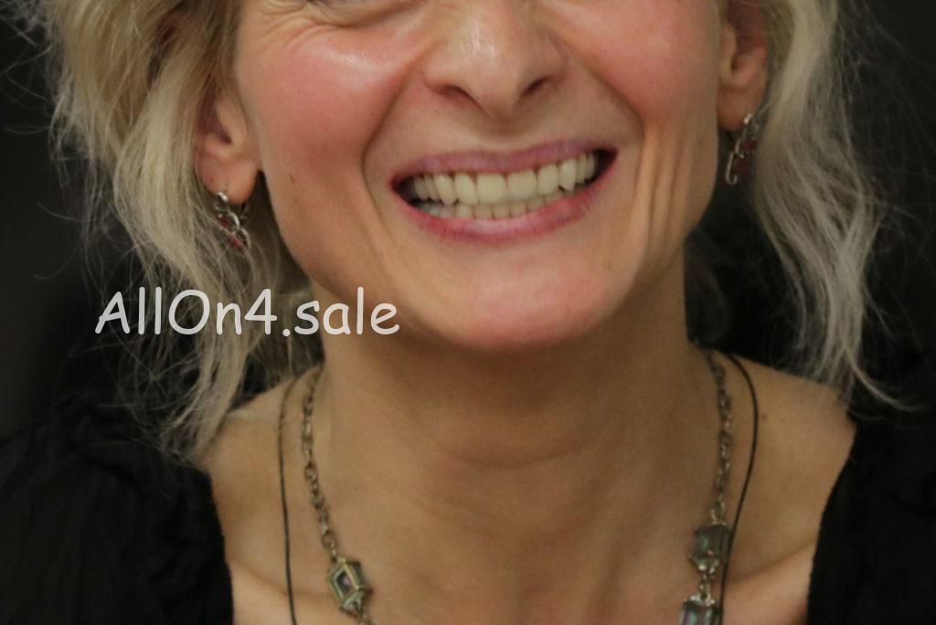 Фото ПОСЛЕ - Пациентка Н. – Зубы за 1 день по протоколам All-on-4 и All-on-6