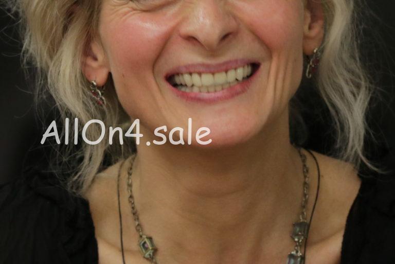 Пациентка Н. - Зубы за 1 день по протоколам All-on-4 и All-on-6