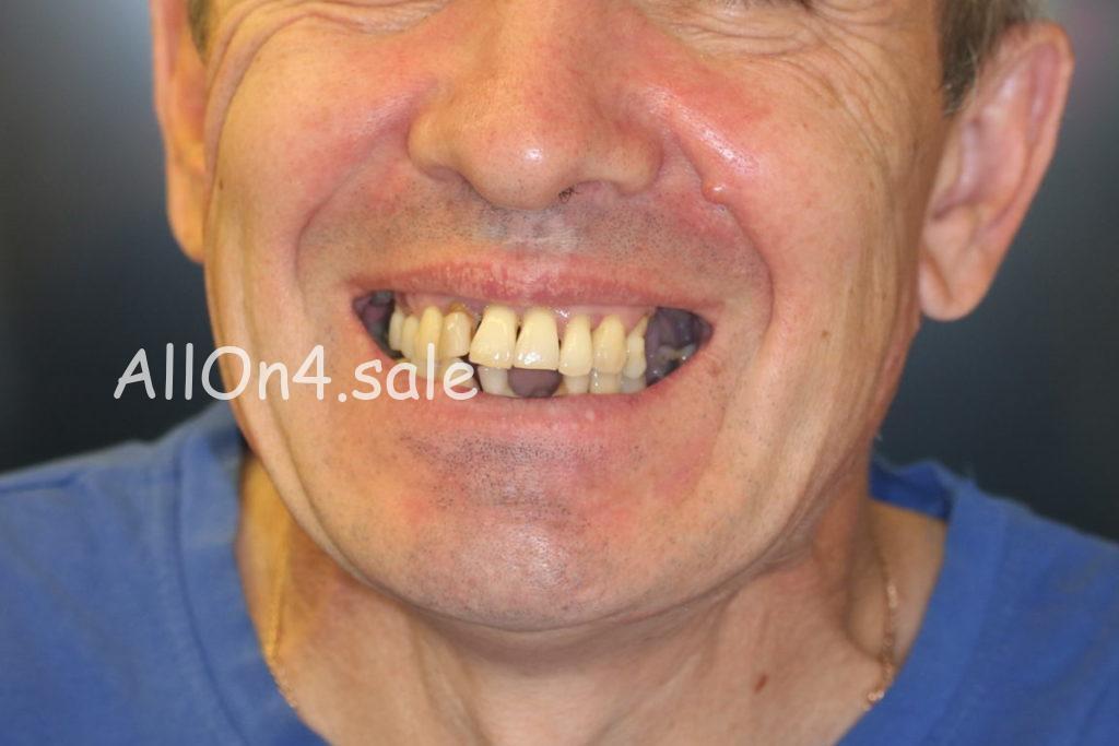 Фото ДО - Пациент В. - несъемное протезирование на 4 имплантах обеих челюстей