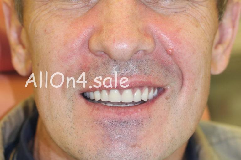 Пациент В. - несъемное протезирование на 4 имплантах обеих челюстей