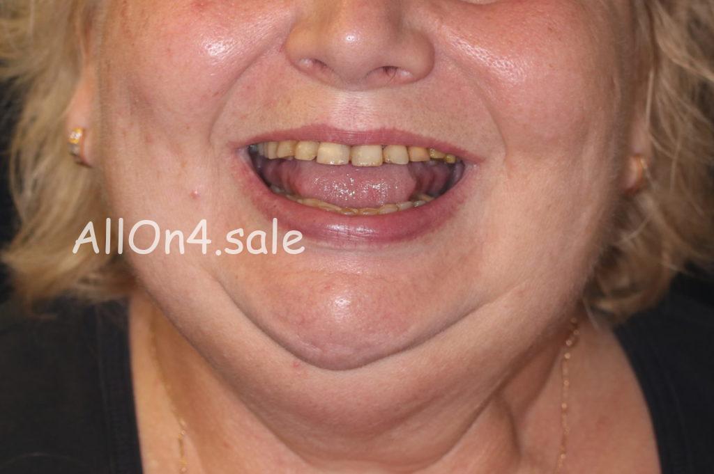 Фото ДО - Пациентка Е. – Вставили зубы за 1 день по протоколу Allon4