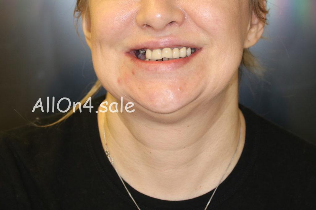 Фото ДО - Пациентка Е. – Протезирование зубов на 4 имплантах на обеих челюстях