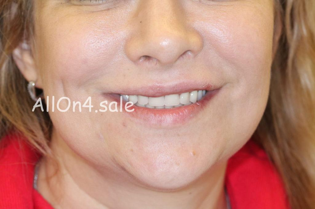 Фото ПОСЛЕ - Пациентка Е. – Протезирование зубов на 4 имплантах на обеих челюстях