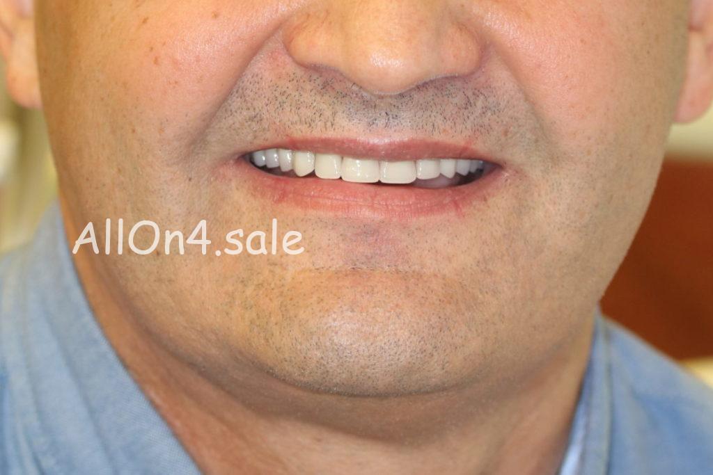 Фото ПОСЛЕ - Пациент Г. - Все на 4 имплантах на верхней и нижней челюсти при частичной адентии