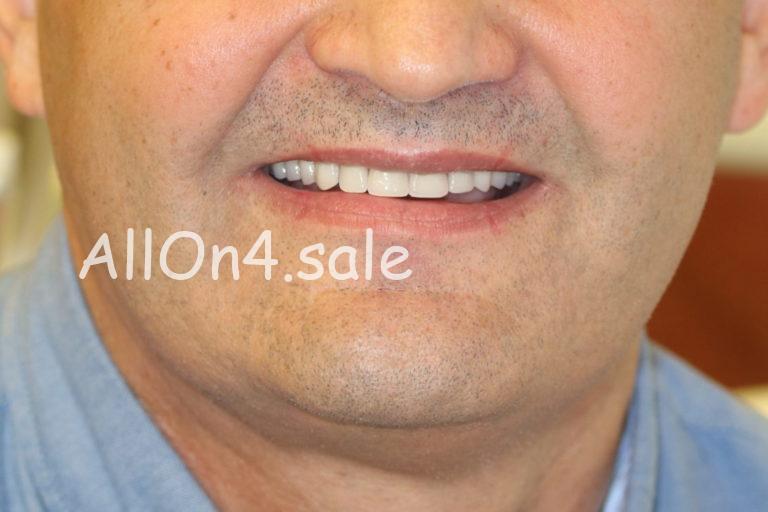Пациент Г. - Все на 4 имплантатах на верхней и нижней челюсти при частичной адентии
