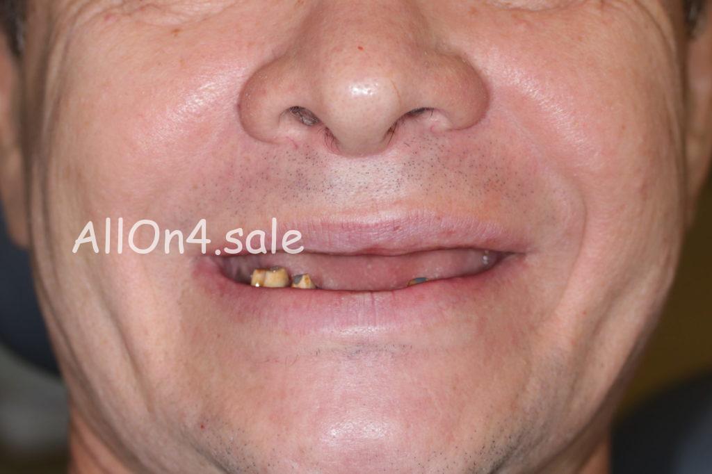 Фото ДО - Пациент Е. – All-on-4 имплантация верхней и нижней челюстей