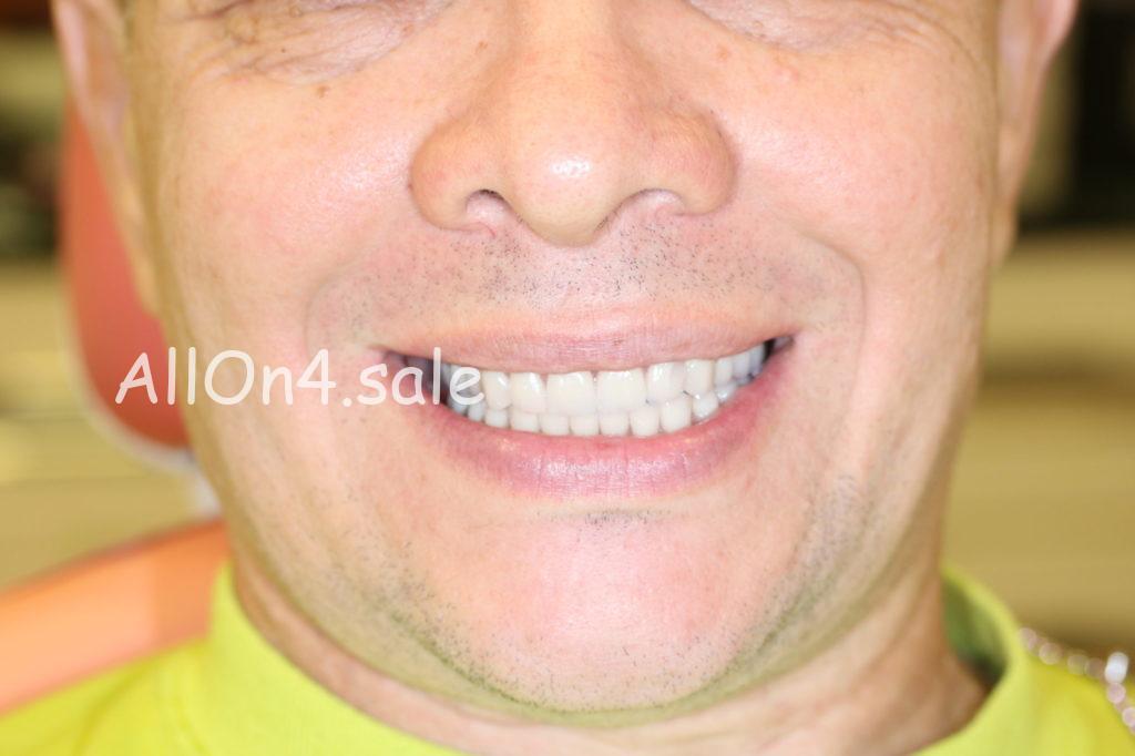 Фото ПОСЛЕ - Пациент Е. – All-on-4 имплантация верхней и нижней челюстей