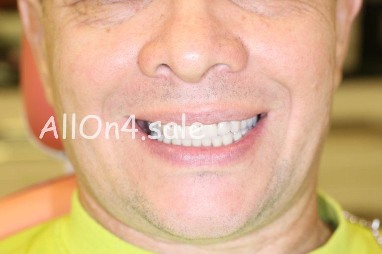 Пациент Е. - All-on-4 имплантация верхней и нижней челюстей с немедленной нагрузкой