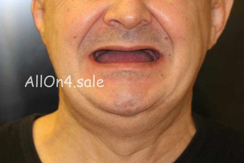 Фото ДО - Пациент Г. - Протезирование на четырех имплантах при полной адентии