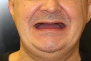 Чем опасно отсутствие зубов?