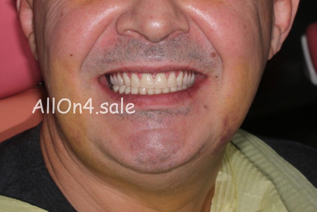 Фото ПОСЛЕ- Пациент Г. - Протезирование на четырех имплантах при полной адентии