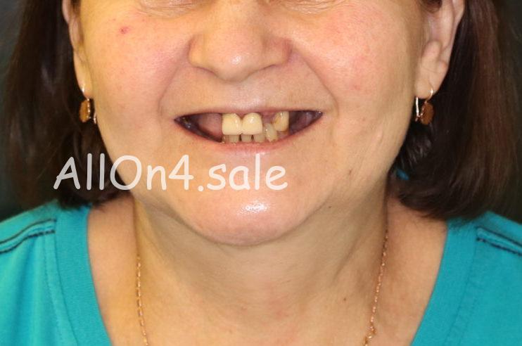Фото ДО – Пациентка К. – Все зубы за 1 день на верхней и нижней челюсти