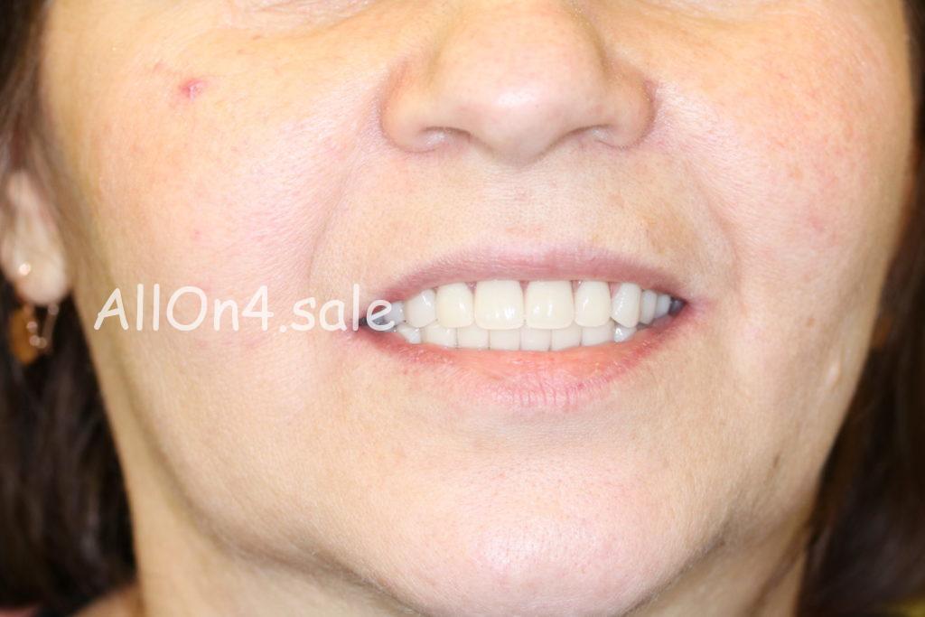 Фото ПОСЛЕ - Пациентка К. – Все зубы за 1 день на верхней и нижней челюсти