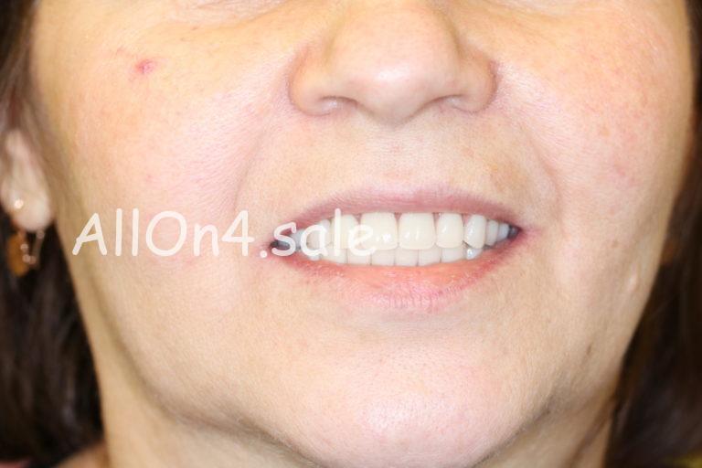 Пациентка К. - Все зубы за 1 день на верхней и нижней челюсти
