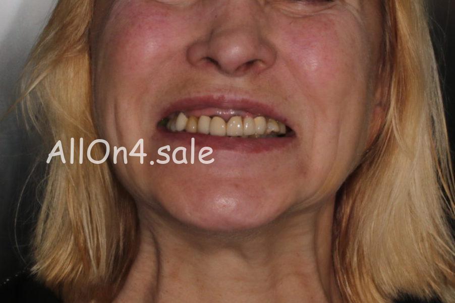 """Фото ДО - Пациентка Я. – Протезирование обеих челюстей на 4 имплантах по методу """"Все на четырёх"""""""