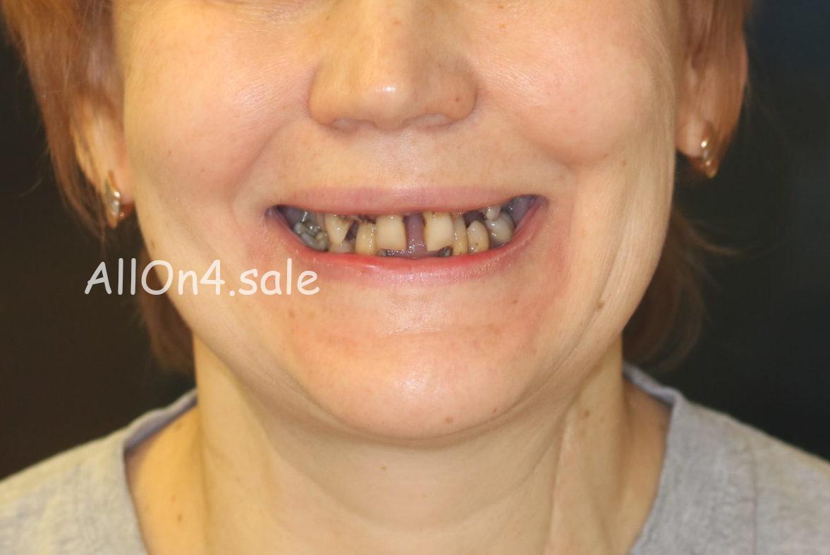Фото ДО - Пациентка Т. – Сделали все зубы за 1 день по методу Allon4