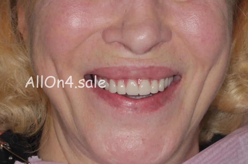 "Фото ПОСЛЕ - Пациентка Я. – Протезирование обеих челюстей на 4 имплантах по методу ""Все на четырёх"""