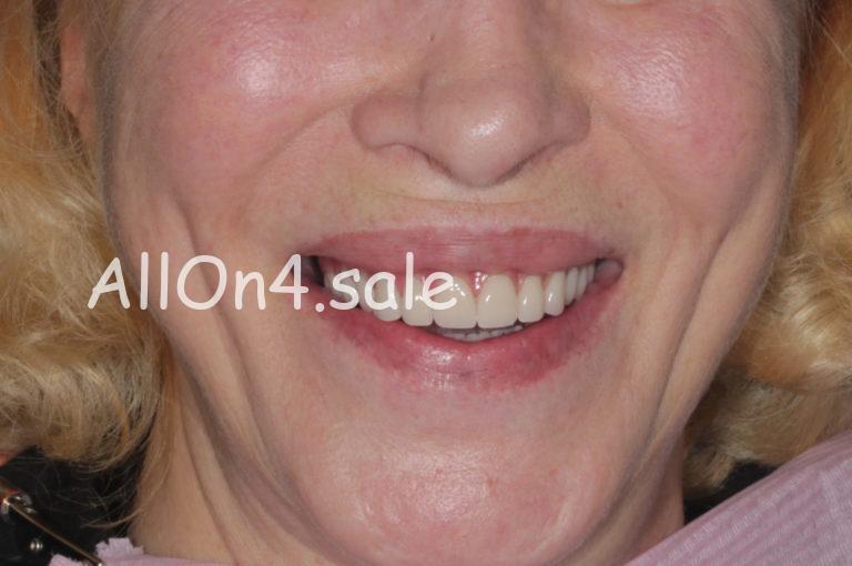 """Пациентка Я. - Протезирование обеих челюстей на 4 имплантах с немедленной нагрузкой по методу """"Все на четырёх"""""""