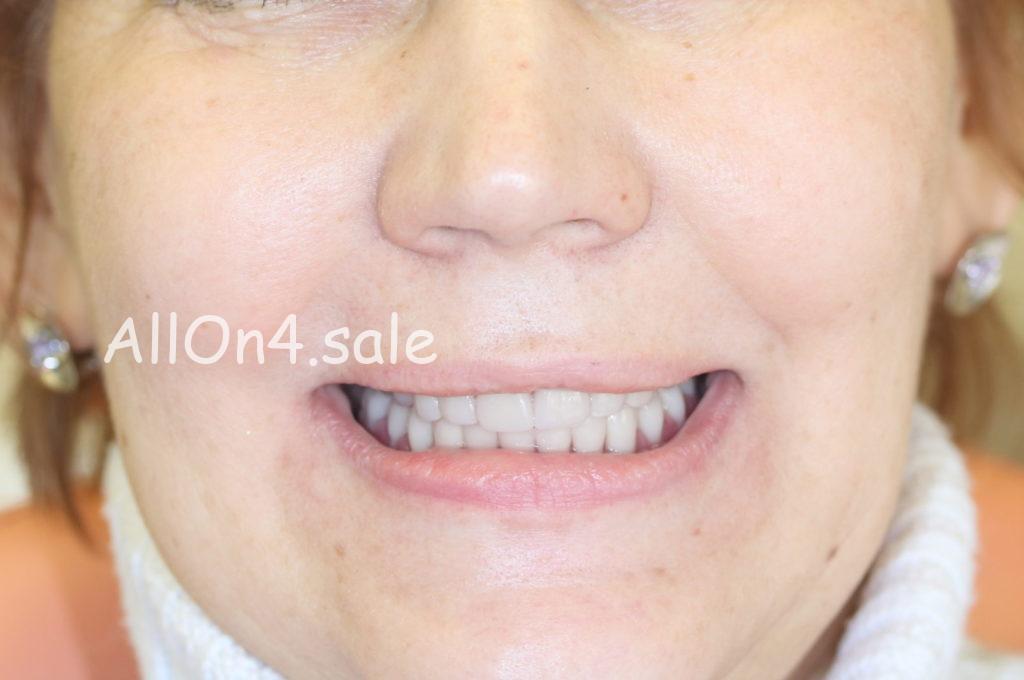 Фото ПОСЛЕ - Пациентка Т. – Сделали все зубы за 1 день по методу Allon4