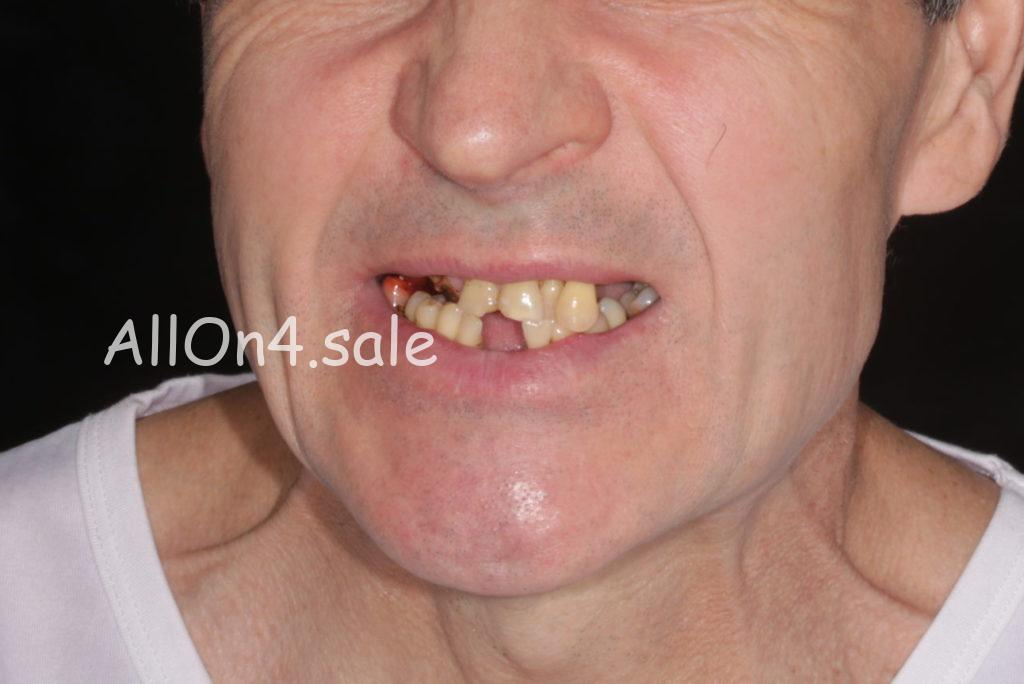 """Фото ДО - Пациент Г. - протезирование верхней челюсти """"Все на четырех имплантах"""" и нижней челюсти """"Все на 6 имплантах"""""""