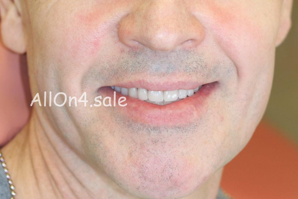 """Фото ПОСЛЕ - Пациент Г. - протезирование верхней челюсти """"Все на четырех имплантах"""" и нижней челюсти """"Все на 6 имплантах"""""""