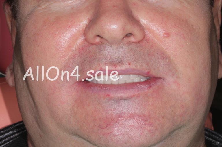 Пациент Ж. - All-on-4 имплантация под ключ обе челюсти