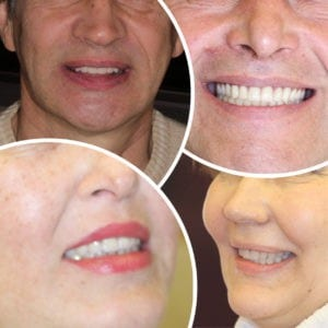 Больше фото до и после протезирования