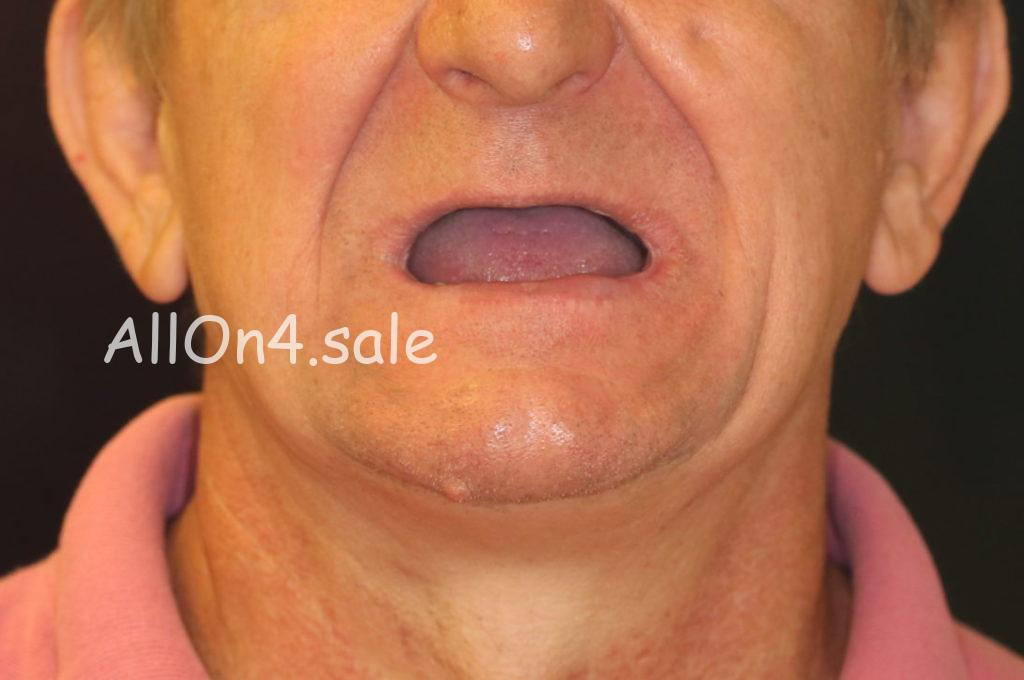 Фото ДО – Пациент В. – протезирование при практически полной адентии