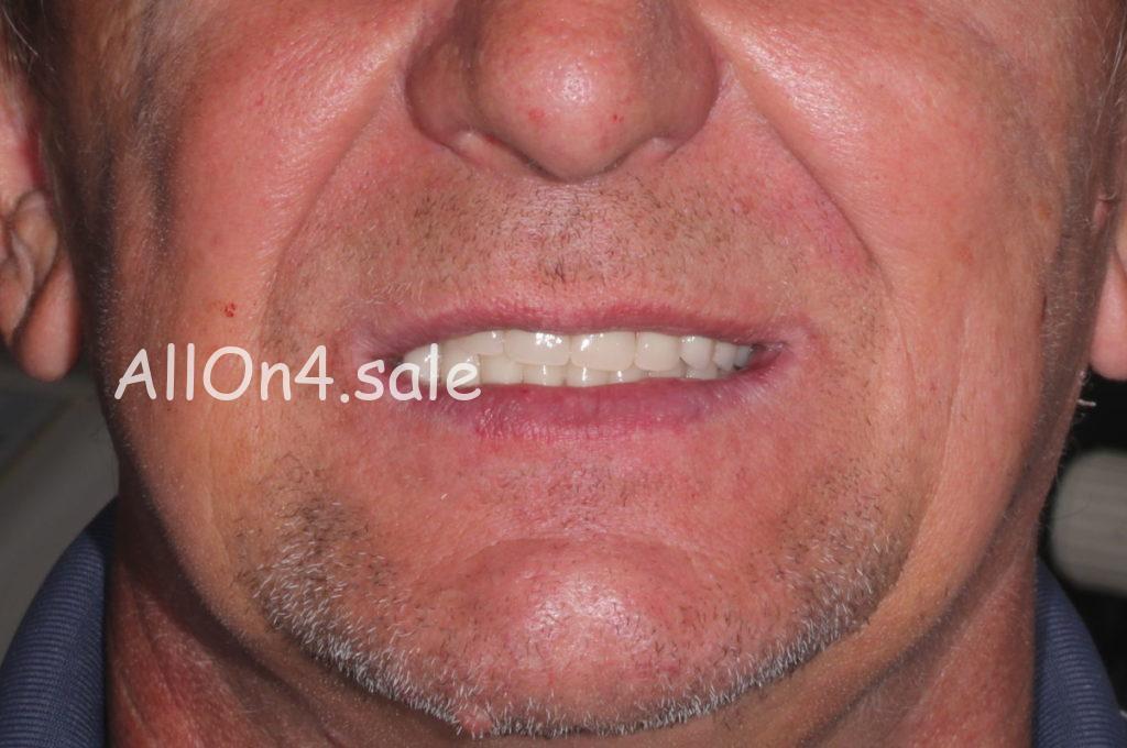 Фото ПОСЛЕ – Пациент В. – протезирование при практически полной адентии