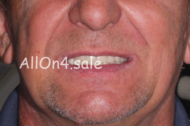 Пациент В. – протезирование всех зубов при практически полной адентии