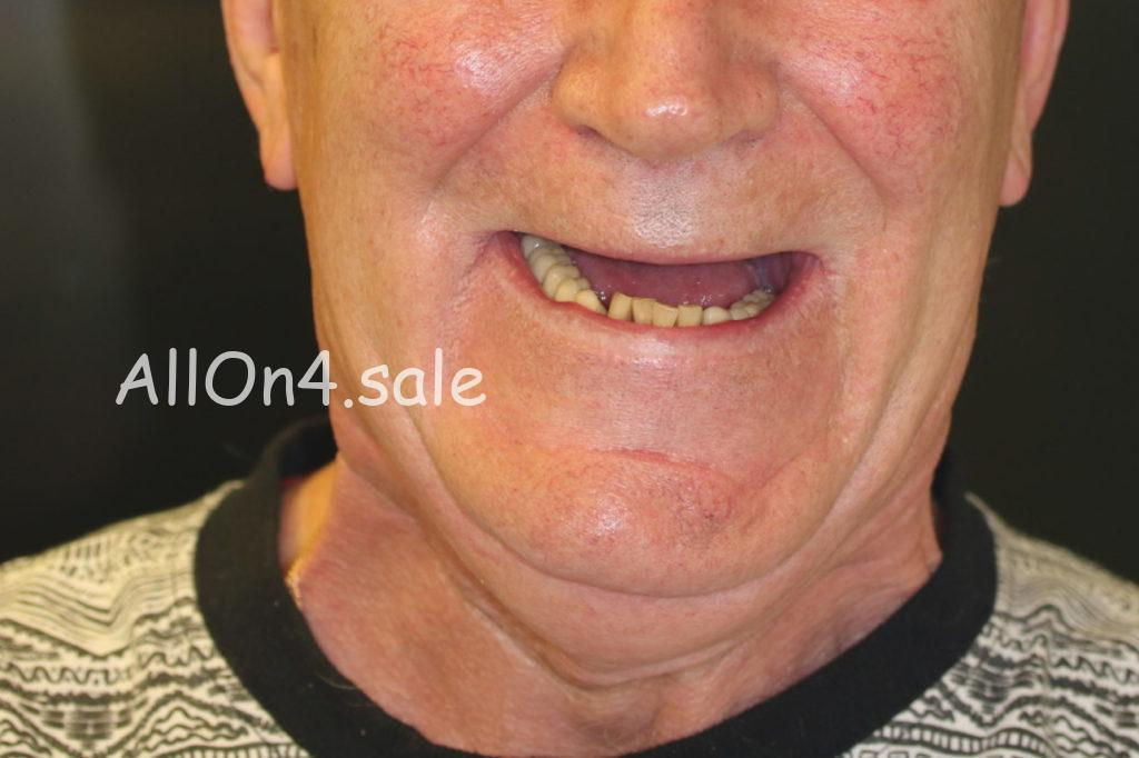 "Фото ДО - Пациент Б. - Протокол ""Все на шести"" на верхней и нижней челюсти"