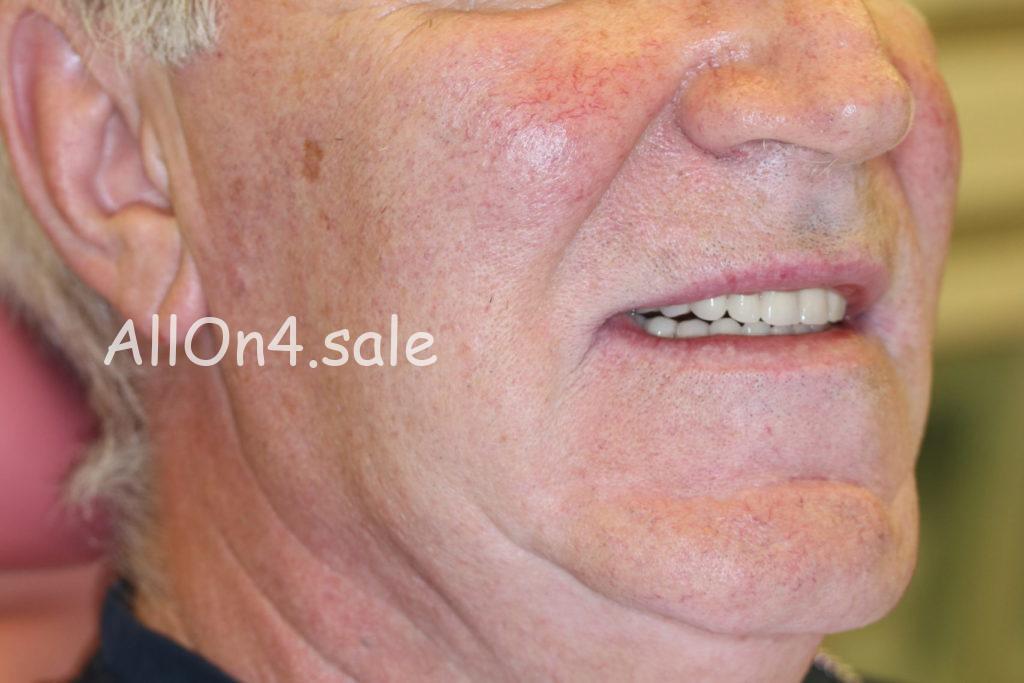 """Фото ПОСЛЕ - Пациент Б. - Протокол """"Все на шести"""" на верхней и нижней челюсти"""