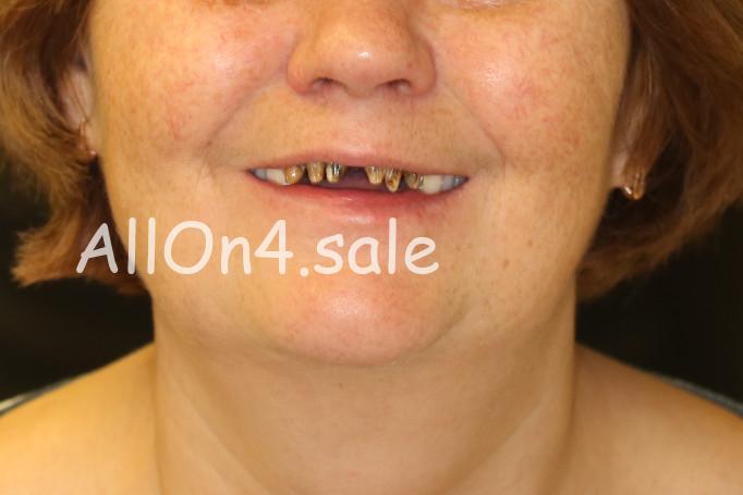Фото ДО – Пациентка Г. – Протезирование All-on-four верхнего и нижнего зубных рядов