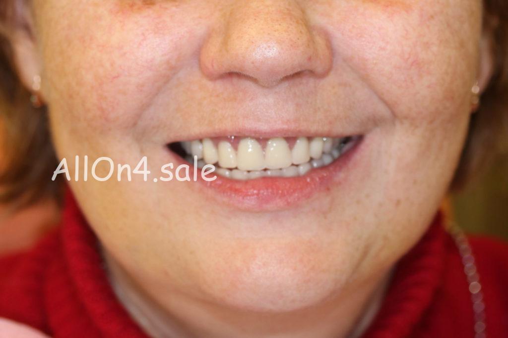 Фото ПОСЛЕ – Пациентка Г. – Протезирование All-on-four верхнего и нижнего зубных рядов