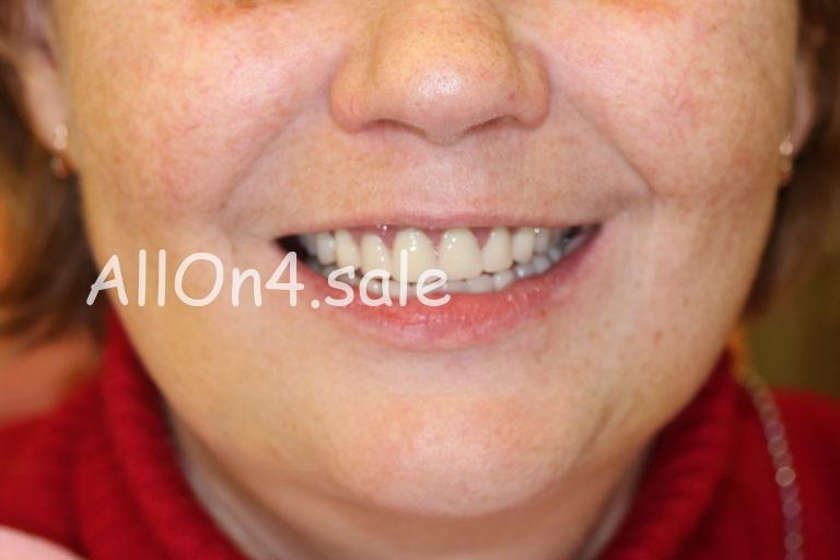 Пациентка Г. - Протезирование All-on-four верхнего и нижнего зубных рядов