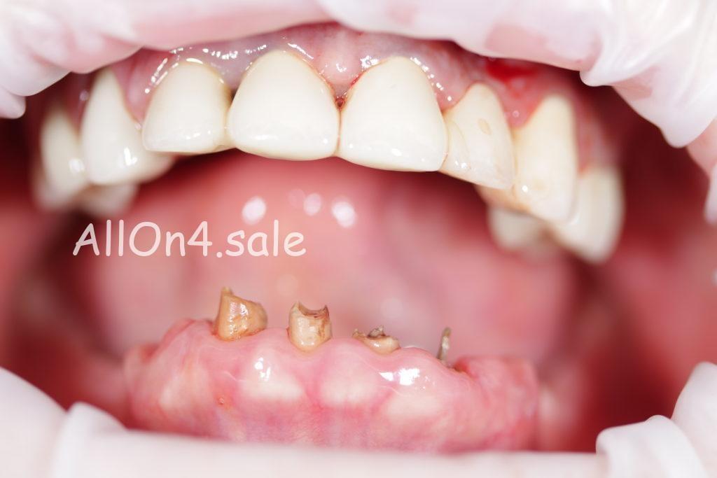 """Фото ДО протезирования - Пациент В. - верхние и нижние зубы по протоколу """"All-on-4"""""""