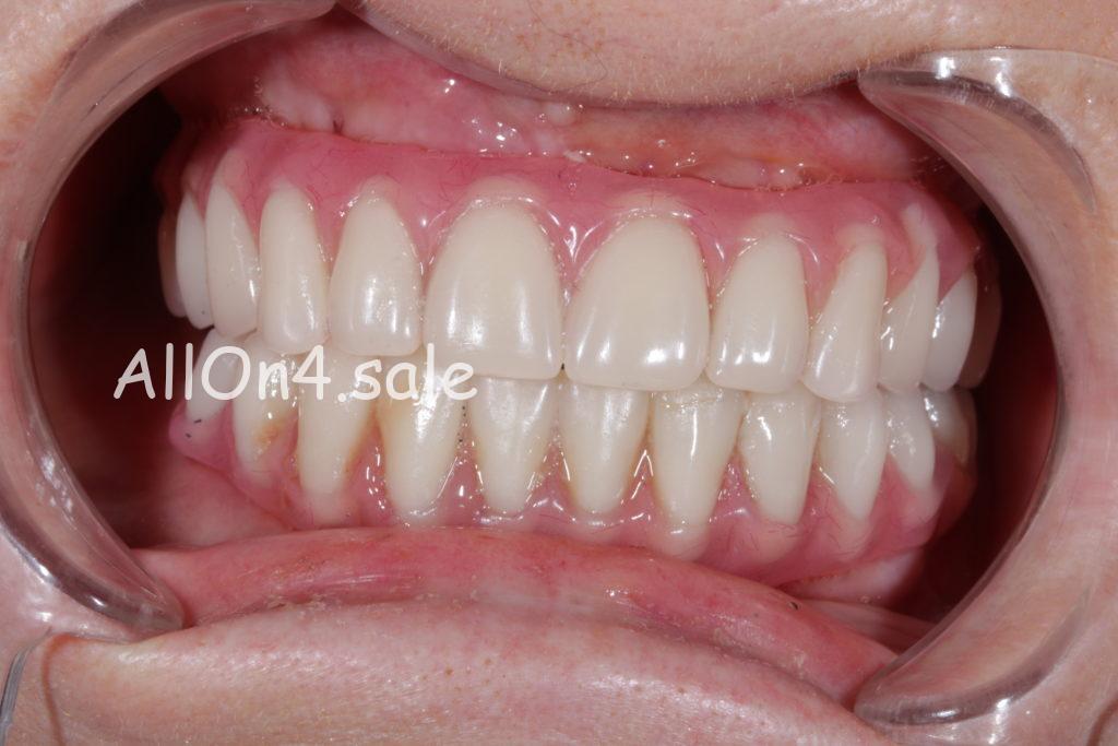 """Фото ПОСЛЕ - Пациент В. - верхние и нижние зубы по протоколу """"All-on-4"""""""