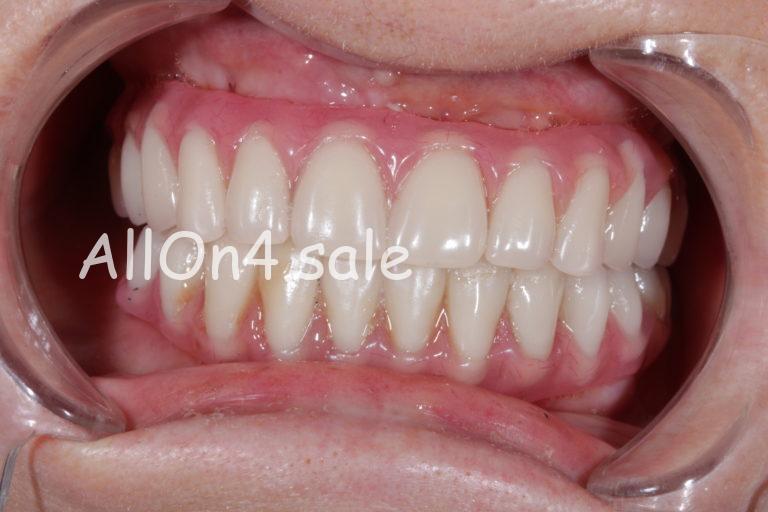 """Пациент В. - верхние и нижние зубы по протоколу """"All-on-4"""""""