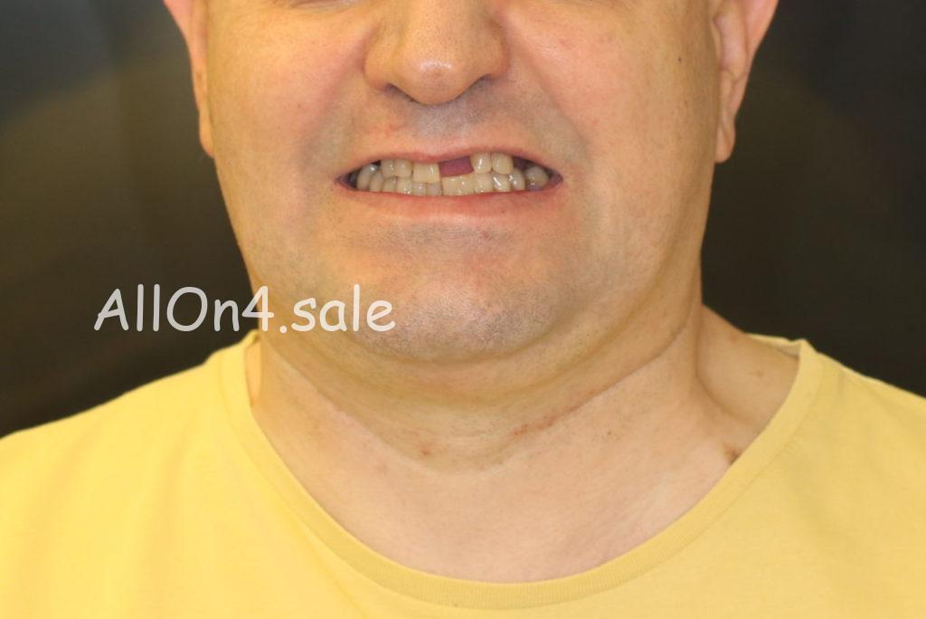 """Фото ДО протезирования – Пациент Б. – """"Все зубы за один день"""" верх и низ"""